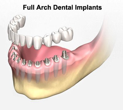 Full Arch Affordable Dental Implants